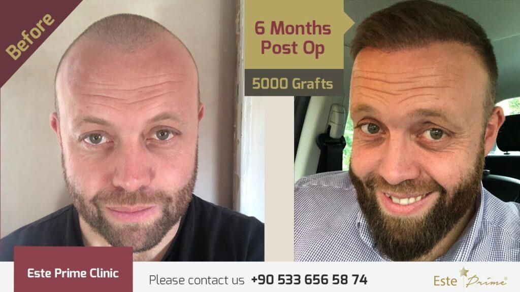 Saç sakal kaş ekimi makalesi